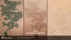 Picosure laser tattoo removal before and after images