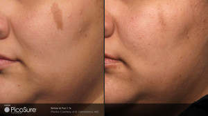 Picosure laser hyperpigmentation removal before and after images