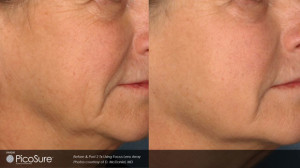 Advanced laser hyperpigmentation removal before and after images