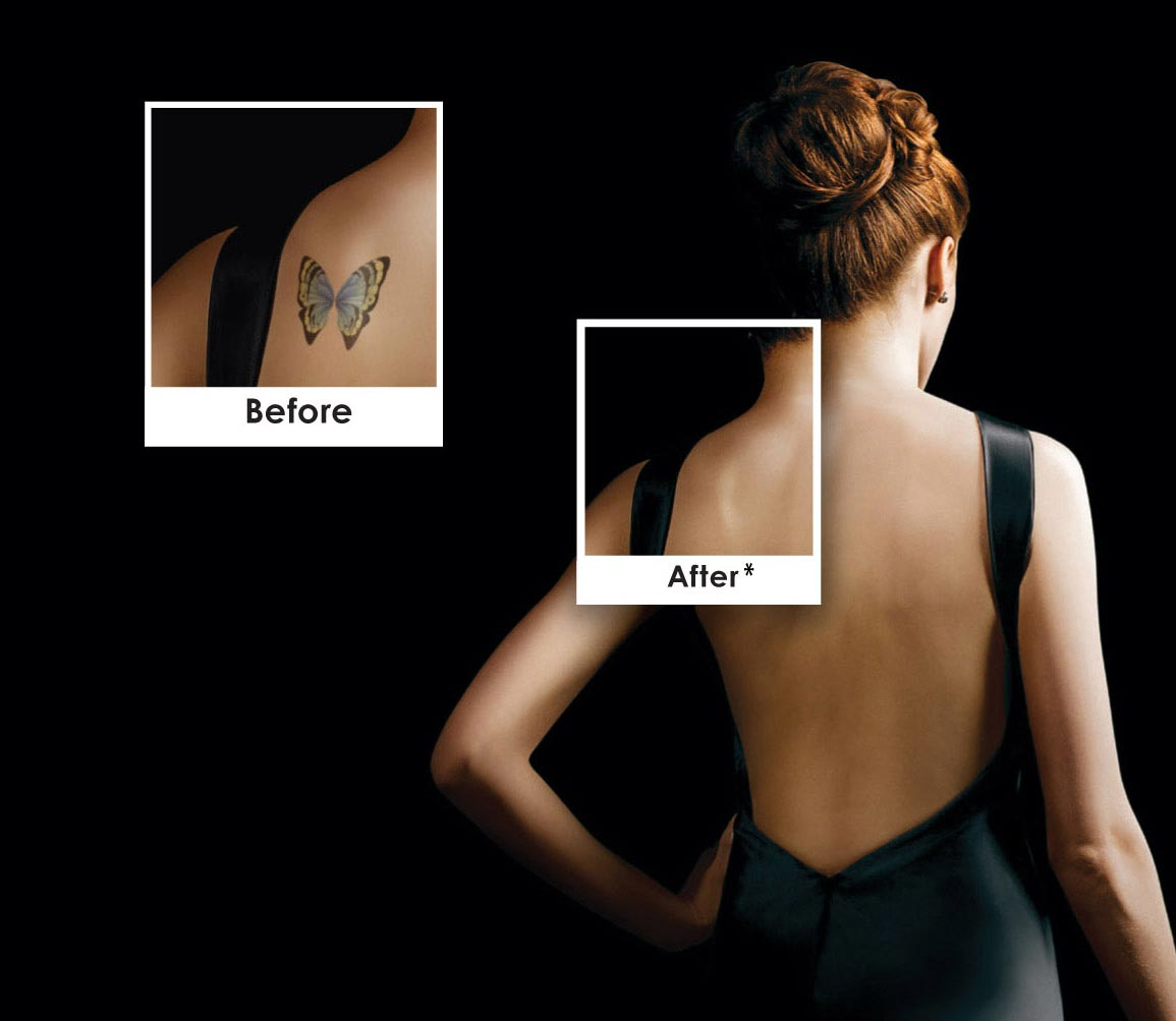 Picosure laser tattoo removal technology